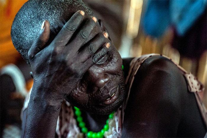 Unicef-Sud-Sudan
